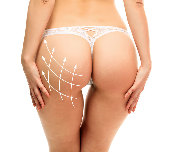 Illustrative image showing the potential reshaping of the buttocks Dr. Zuckerman is able to achieve with buttock augmentation. Also knows as the BBL, this is Dr. Zuckerman's #1 pick for trending plastic surgery procedure of 2017.