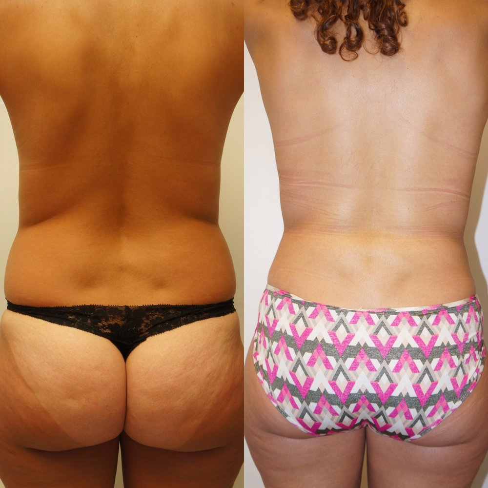 A before and after result for a liposuction patient of Dr. Zuckerman's. This patient underwent liposuction of the abdomen, flanks, and lower back.