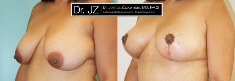 Featured Breast Lift (Mastopexy) #3 by Dr. Joshua Zuckerman, Left Oblique View