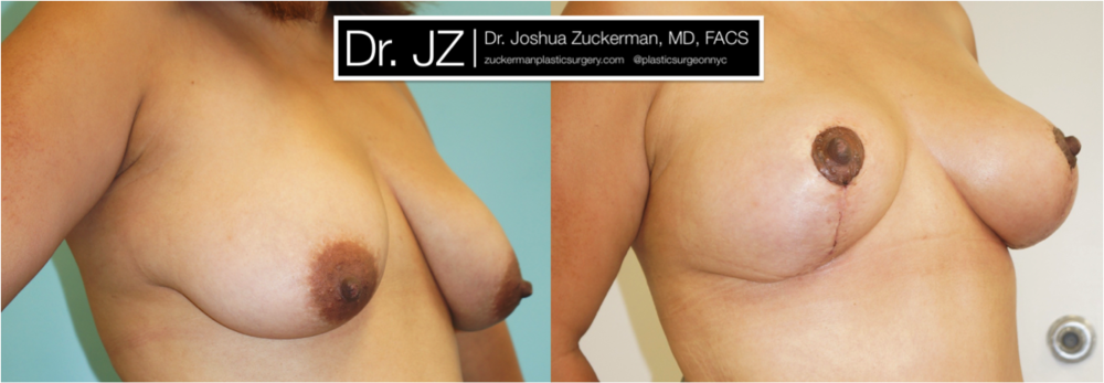 Featured Breast Lift (Mastopexy) #3 by Dr. Joshua Zuckerman, Right Oblique View