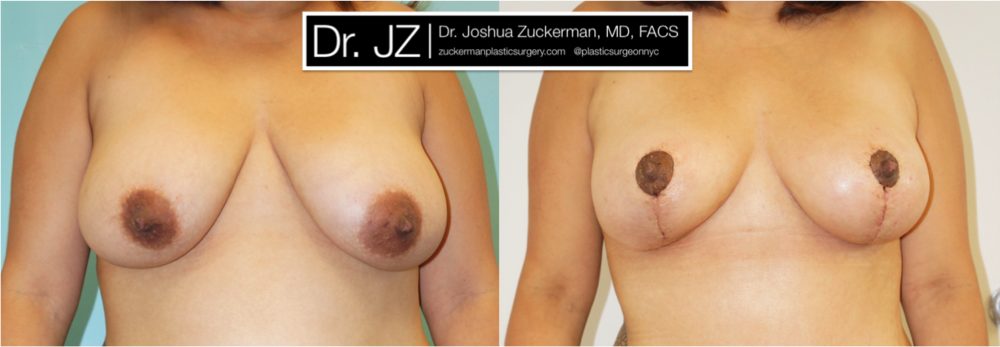Featured Breast Lift (Mastopexy) #3 by Dr. Joshua Zuckerman, Frontal View
