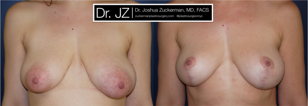 Featured Breast Lift (Mastopexy) #4 by Dr. Joshua Zuckerman, Frontal View