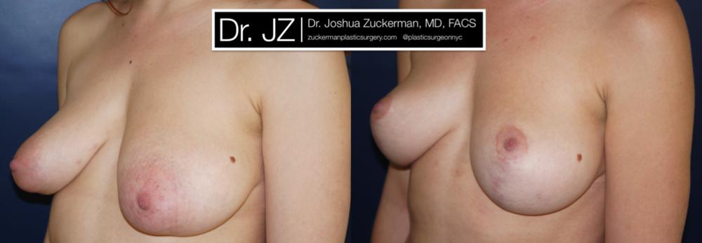 Featured Breast Lift (Mastopexy) #4 by Dr. Joshua Zuckerman, Left Oblique View