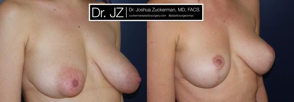 Featured Breast Lift (Mastopexy) #4 by Dr. Joshua Zuckerman, Right Oblique View