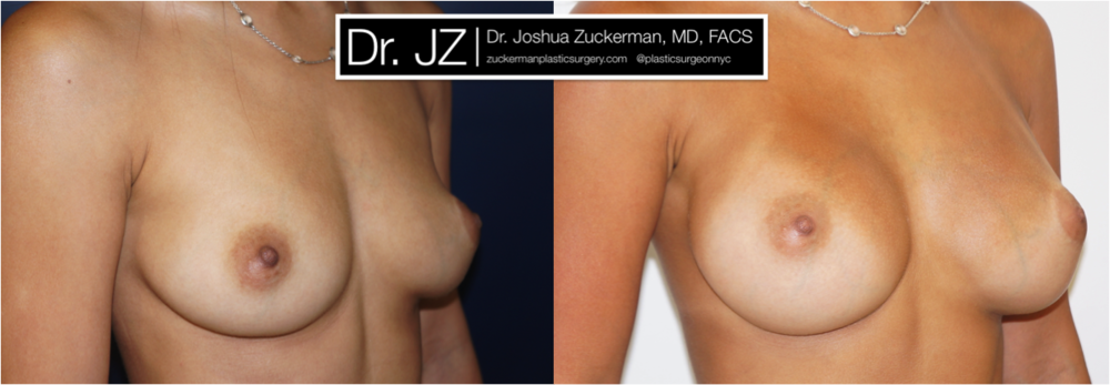 Featured Breast Augmentation #1 by Dr. Joshua Zuckerman, Right Oblique View