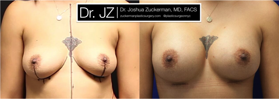 Featured Breast Augmentation #2 by Dr. Joshua Zuckerman, Frontal View
