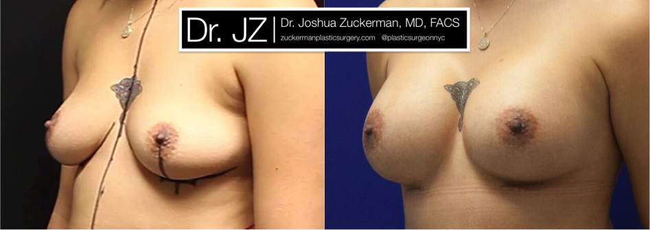 Featured Breast Augmentation #2 by Dr. Joshua Zuckerman, Left Oblique View