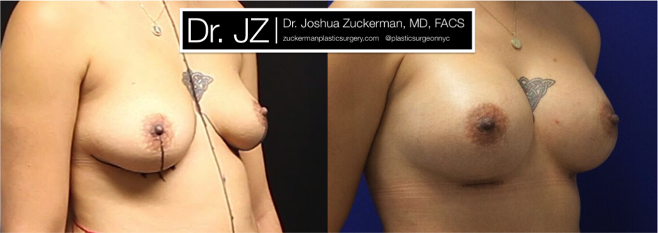 Featured Breast Augmentation #2 by Dr. Joshua Zuckerman, Right Oblique View