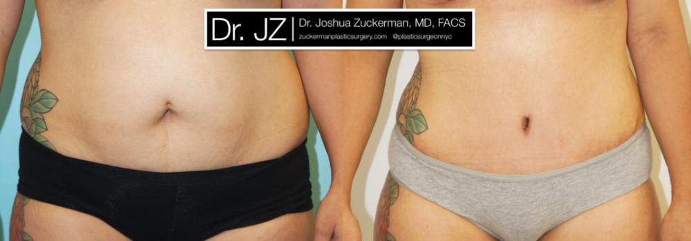 Featured Tummy Tuck Surgery (Abdominoplasty) #3 by Dr. Joshua Zuckerman, Frontal View