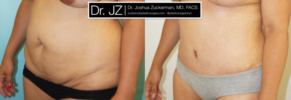 Featured Tummy Tuck Surgery (Abdominoplasty) #3 by Dr. Joshua Zuckerman, Left Oblique View