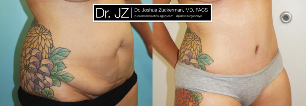 Featured Tummy Tuck Surgery (Abdominoplasty) #3 by Dr. Joshua Zuckerman, Right Oblique View