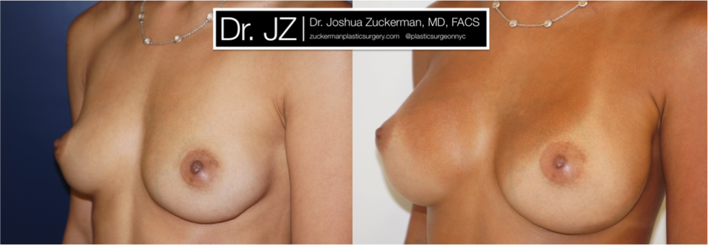 Featured Breast Augmentation #1 by Dr. Joshua Zuckerman, Left Oblique View