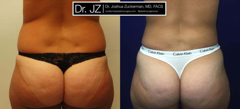 Featured Liposuction #1 by Dr. Joshua Zuckerman, Back View