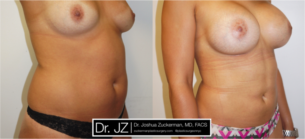 Featured Mommy Makeover Surgery #2 by Dr. Joshua Zuckerman, Right Oblique View