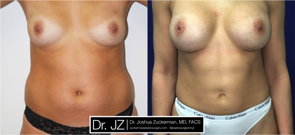Featured Mommy Makeover Surgery #2 by Dr. Joshua Zuckerman, Frontal View