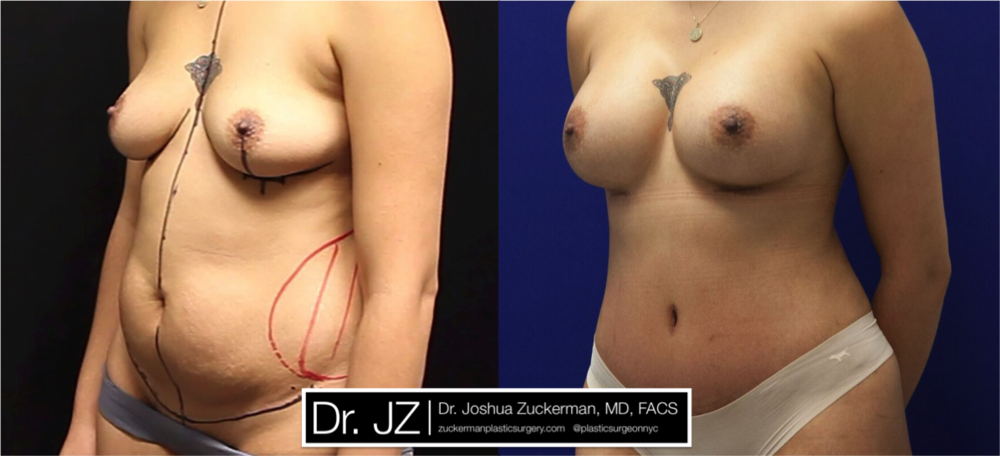 Featured Mommy Makeover Surgery #1 by Dr. Joshua Zuckerman, Left Oblique View