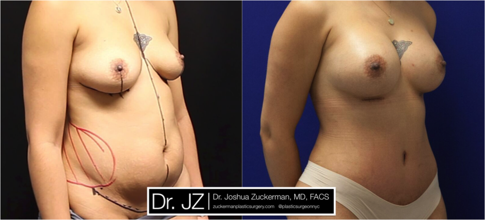 Featured Mommy Makeover Surgery #1 by Dr. Joshua Zuckerman, Right Oblique View