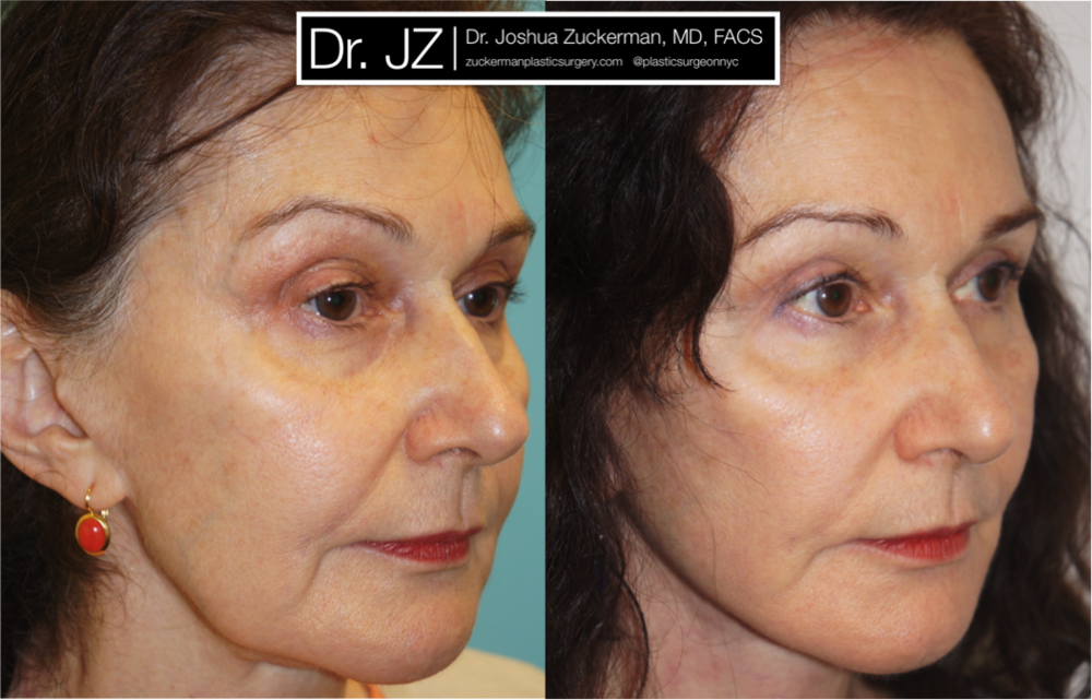 Featured Facelift #2 by Dr. Joshua Zuckerman, Right Oblique View