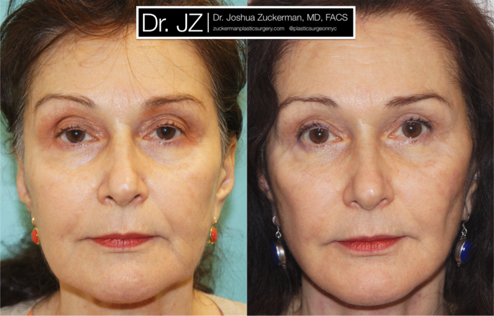 Featured Facelift #2 by Dr. Joshua Zuckerman, Frontal View
