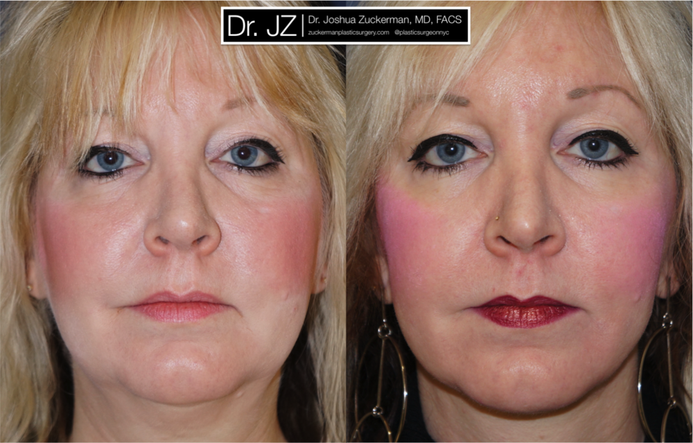 Featured Facelift #1 by Dr. Joshua Zuckerman, Frontal View
