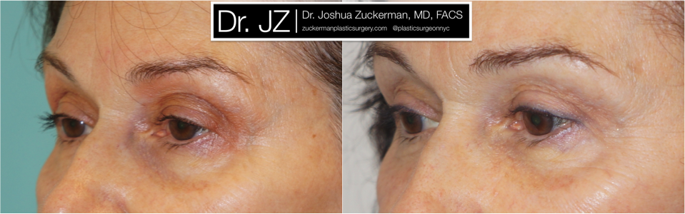 Featured Blepharoplasty (Eyelid Surgery) #2 by Dr. Joshua Zuckerman, Left Oblique View
