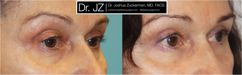 Featured Blepharoplasty (Eyelid Surgery) #2 by Dr. Joshua Zuckerman, Right Oblique View