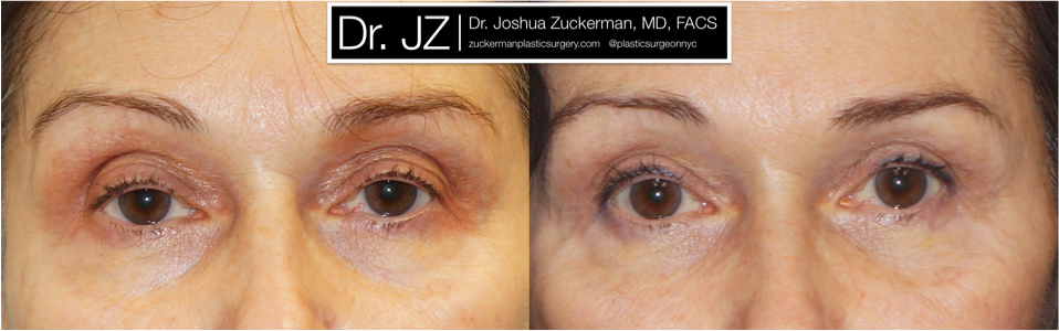 Featured Blepharoplasty (Eyelid Surgery) #2 by Dr. Joshua Zuckerman, Frontal View