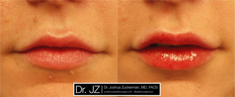 Featured Lip Augmentation #2 by Dr. Joshua Zuckerman, Frontal View