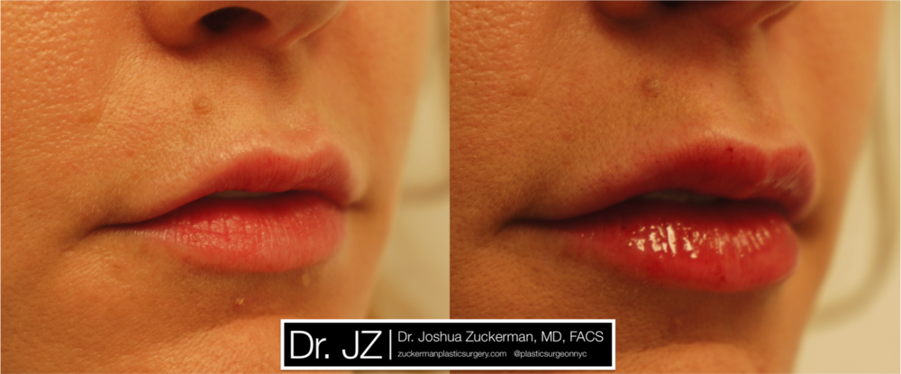 lip_augmentation_2_right_oblique.png