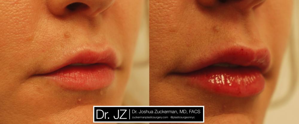 Featured Lip Augmentation #2 by Dr. Joshua Zuckerman, Right Oblique View