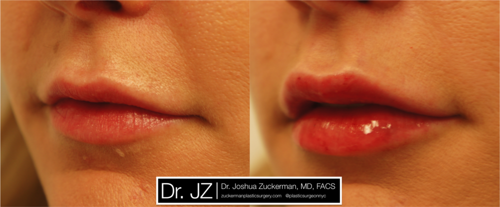 lip_augmentation_2_left_oblique.png