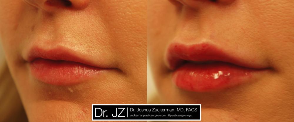 Featured Lip Augmentation #2 by Dr. Joshua Zuckerman, Left Oblique View