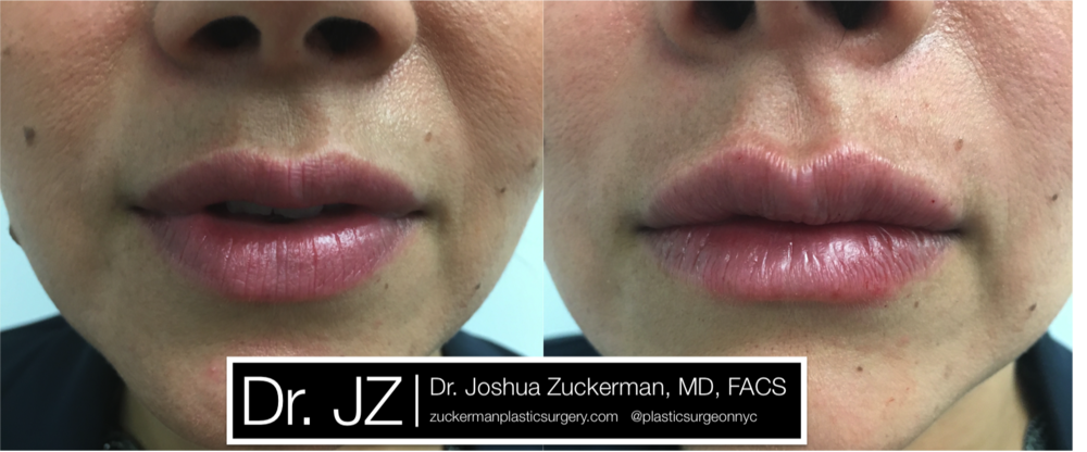 Featured Lip Augmentation #1 by Dr. Joshua Zuckerman, Frontal View