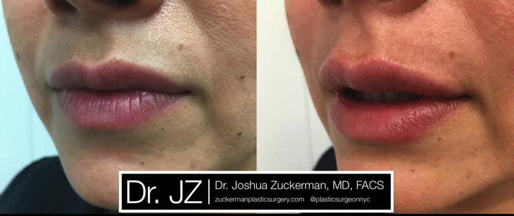Featured Lip Augmentation #1 by Dr. Joshua Zuckerman, Left Oblique View