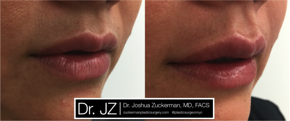 Featured Lip Augmentation #1 by Dr. Joshua Zuckerman, Right Oblique View