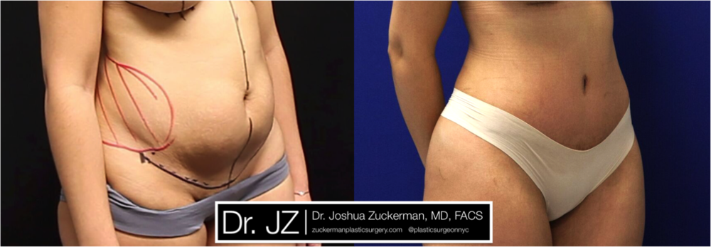 Featured Tummy Tuck Surgery (Abdominoplasty) #2 by Dr. Joshua Zuckerman, Right Oblique View