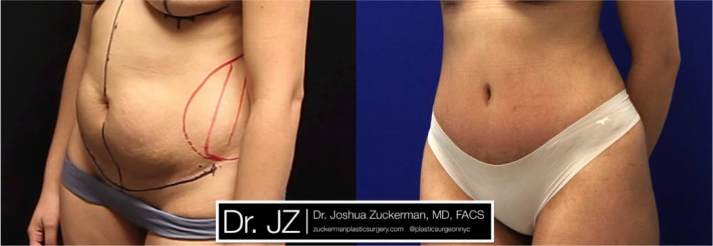 Featured Tummy Tuck Surgery (Abdominoplasty) #2 by Dr. Joshua Zuckerman, Left Oblique View