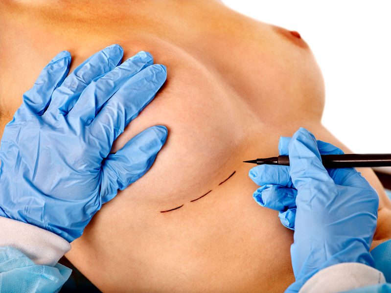Dr. Zuckerman performs a variety of cosmetic breast surgery including breast augmentation, breast lift, and more.