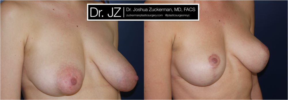 A before and after breast lift / reduction outcome by Dr. Zuckerman 1yr post-op. For more of Dr. Zuckerman's breast reduction before & after images, visit the full Before & After Page.