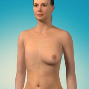 An illustration of a woman after undergoing breast cancer surgery.