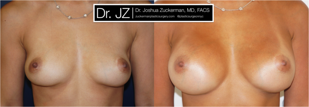 A before and after breast augmentation outcome by Dr. Zuckerman 1yr post-op. For more of Dr. Zuckerman's breast augmentation before & after images, visit the full Before & After Page.