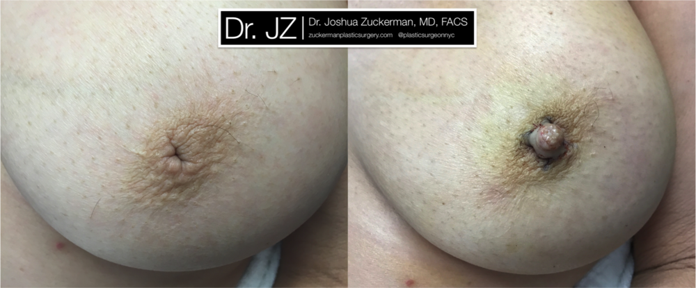 A before and after inverted nipple correction surgery outcome by Dr. Zuckerman immediately post-op. View more Before & After.