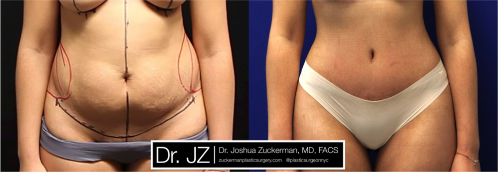 A before and after abdominoplasty (tummy tuck surgery) outcome by Dr. Zuckerman 2 months post-op. Visit the full Before & After page for more of Dr. Zuckerman's abdominoplasty before & after images.