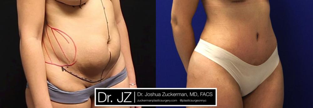Abdominoplasty (Tummy Tuck) Right Oblique by Dr. Zuckerman
