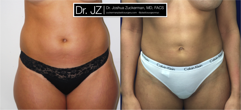 A before and after liposuction outcome by Dr. Zuckerman 6 months post-op. For more of Dr. Zuckerman's liposuction before & after images, visit the full Before & After Page.