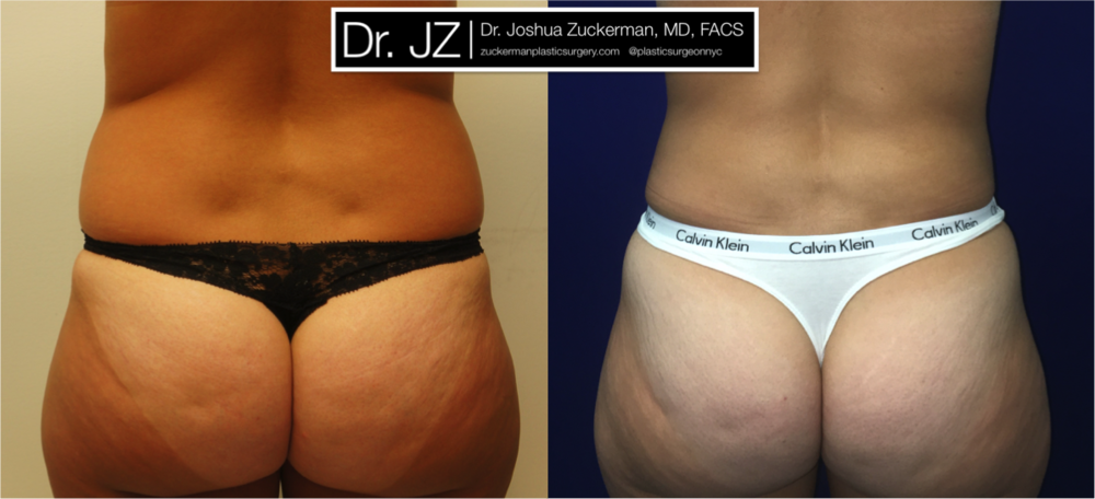 Liposuction Outcome Posterior View by Dr. Zuckerman