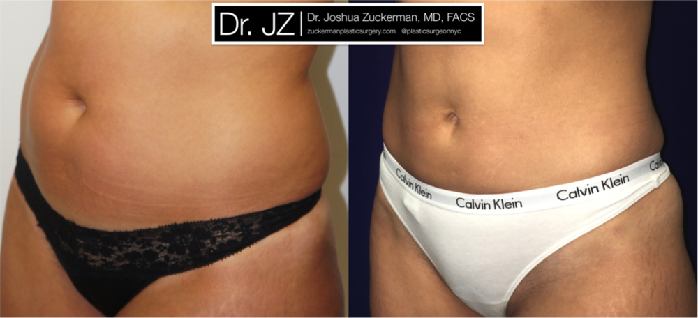 Liposuction Outcome Left Oblique by Dr. Zuckerman