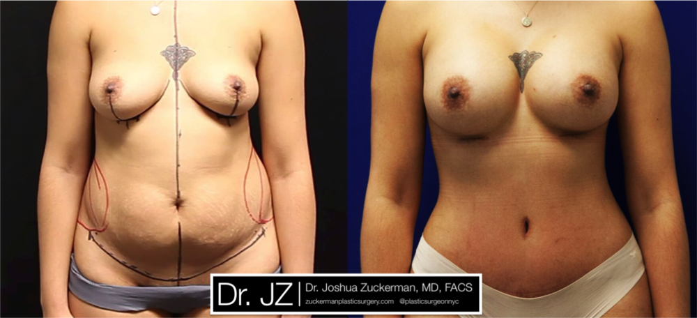 A before and after Mommy Makeover outcome, an abdominoplasty and breast augmentation, by Dr. Zuckerman 2 months post-op. For more of Dr. Zuckerman's Mommy Makeover surgery before & after images, visit the full Before & After Page.