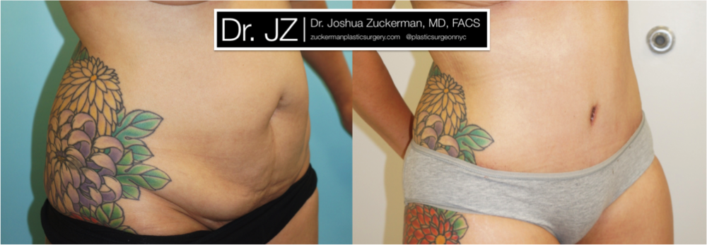 Abdominoplasty (tummy tuck) outcome Right Oblique by Dr. Zuckerman