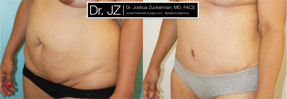 A before and after abdominoplasty plus liposuction outcome by Dr. Zuckerman 2 months post-op. View more Before & After.